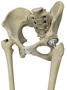 Primary Hip Replacement