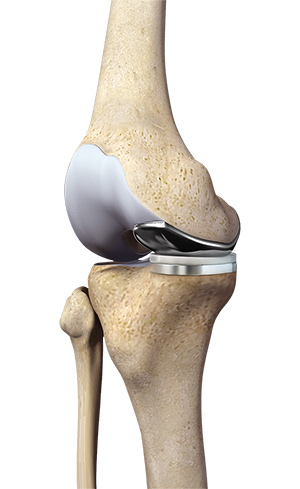 Uni Compartmental Knee Replacement Cheshire Staffordshire